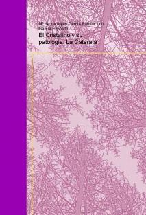 El Cristalino y su patología: La Catarata